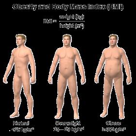 obesity__bmi