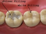 dental-fillings-sherman-oaks